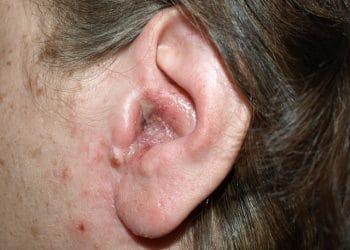 oorontsteking